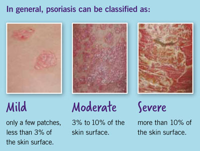 Exams and Tests for Psoriasis 3