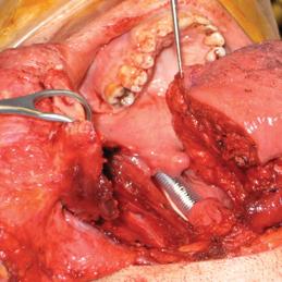Larynx and Oropharynx Cancer in Ireland